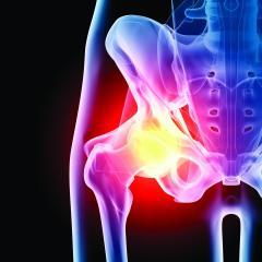 Anterior Hip Replacement: What You Need to Know