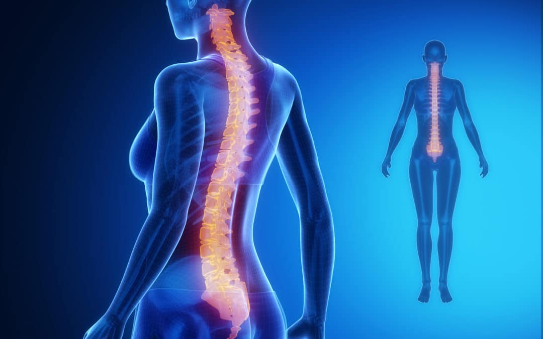 When is Spinal Fusion Surgery Recommended?