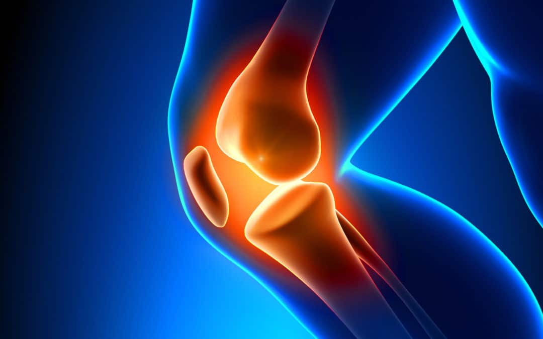Total Joint Replacement: What You Should Know