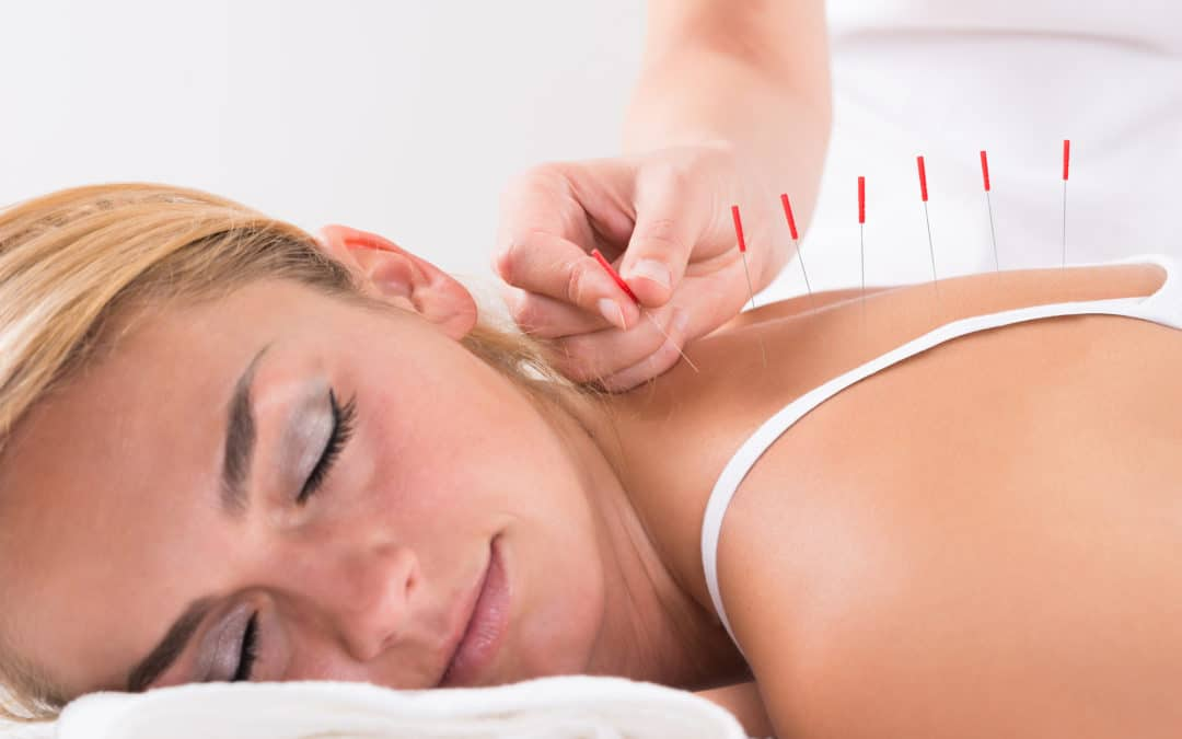 Frequently Asked Questions About Acupuncture Therapy