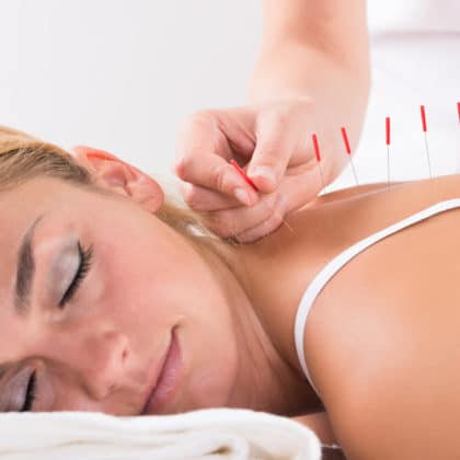 who offers the best acupuncture wellington?