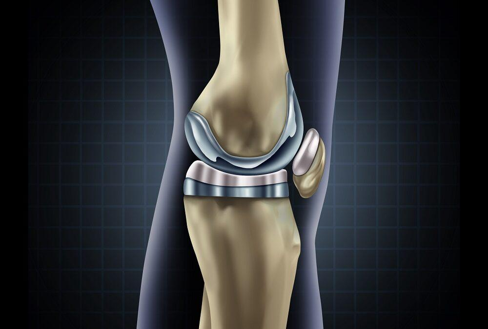 Everything You Need to Know about Total Knee Replacement (Arthroplasty)