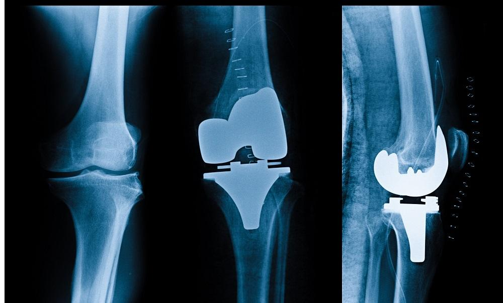 Outpatient Joint Replacement at the Orthopedic Center of Palm Beach County (OCPBC)
